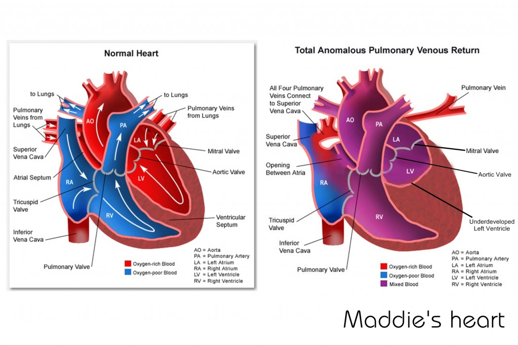Maddie's heart (TAPVR and HLHS)