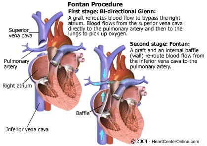 The Fontan procedure